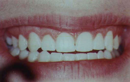 "Inadaquate ""Normal"" Gum Recession - After"